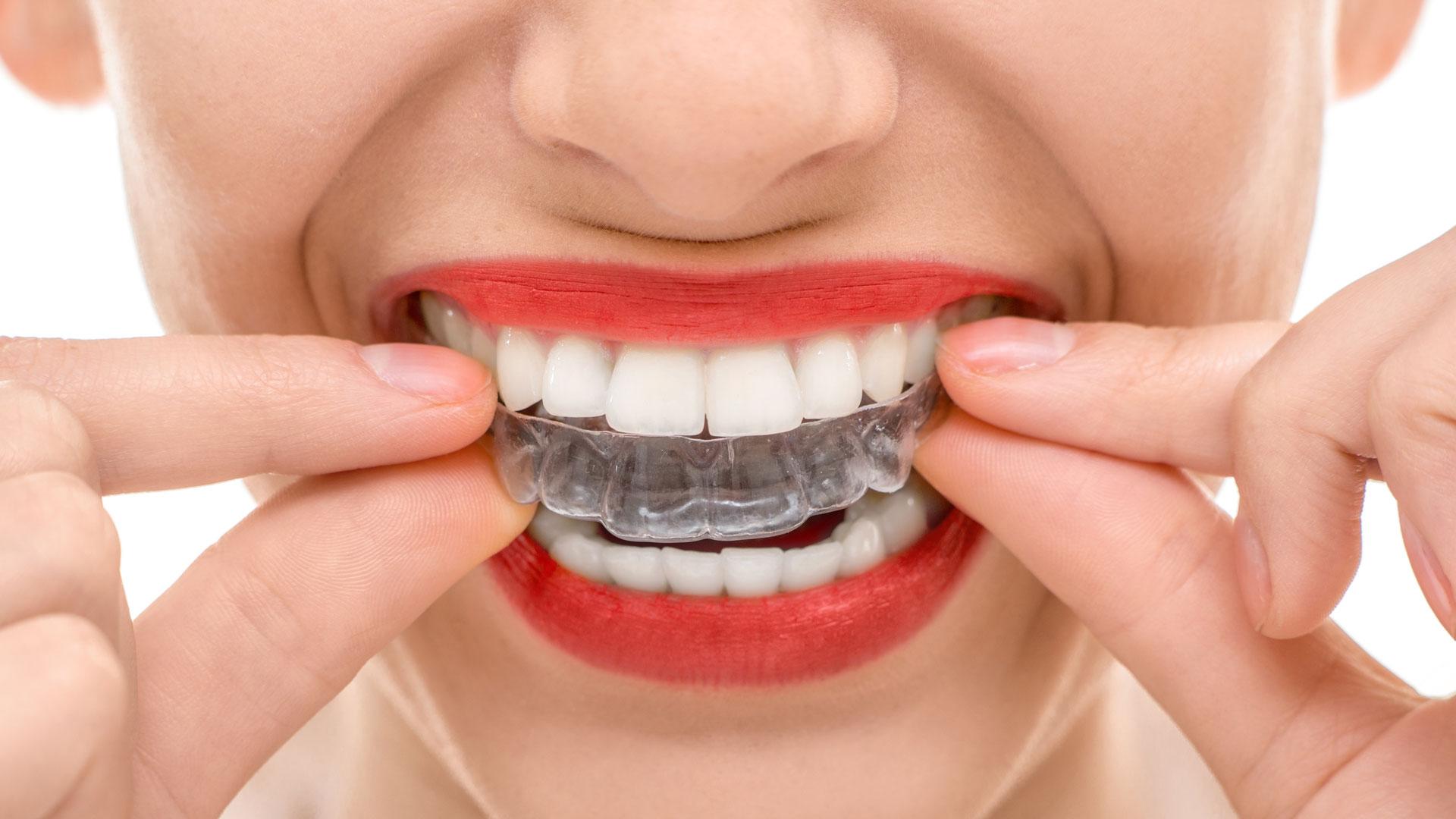 studio-dentistico-odontoiatrico-emanuelli-san-remo-liguria19-ortodonzia